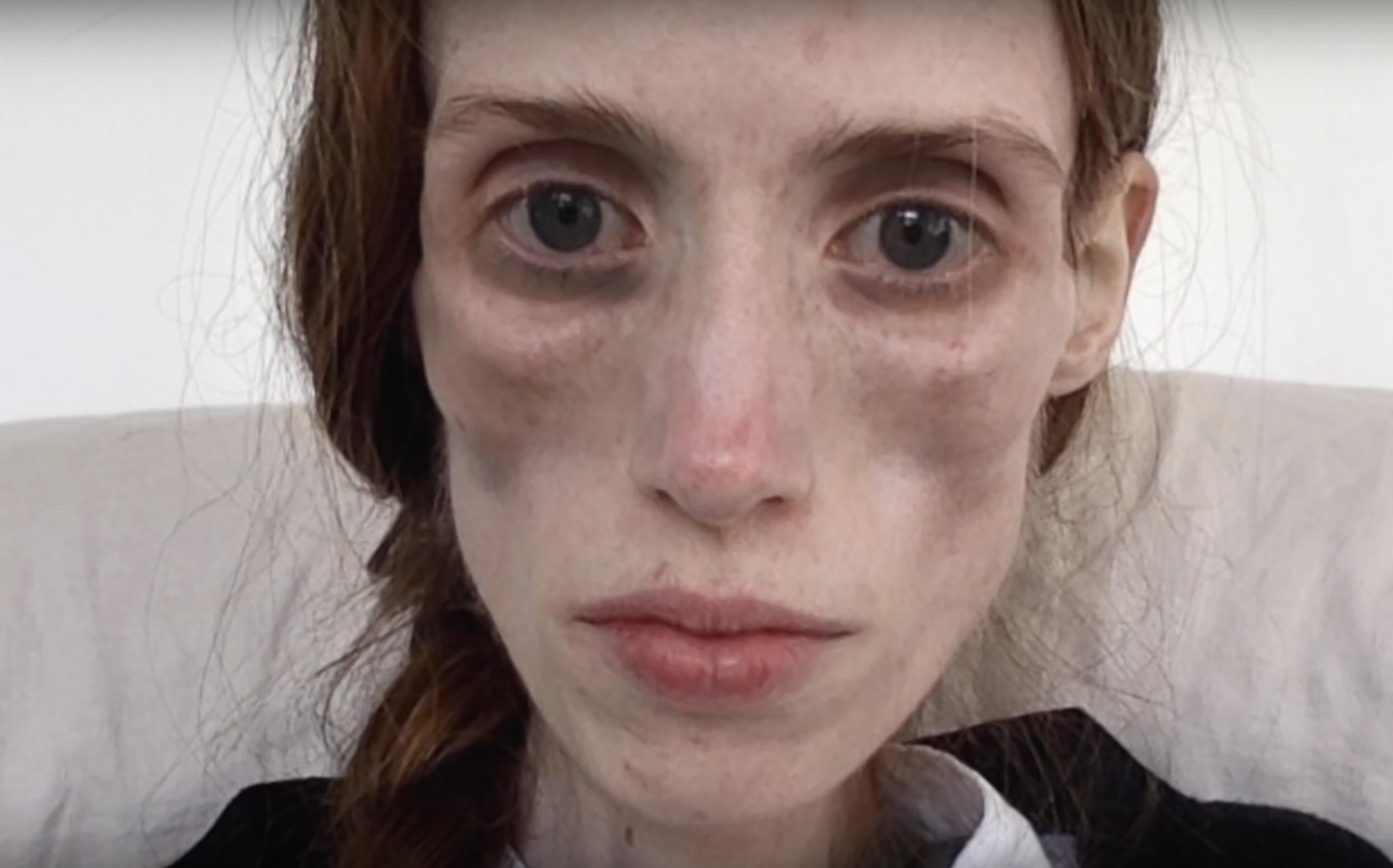 Korrelatie overspoeld met hulpvragen na docu 'Emma wil leven'